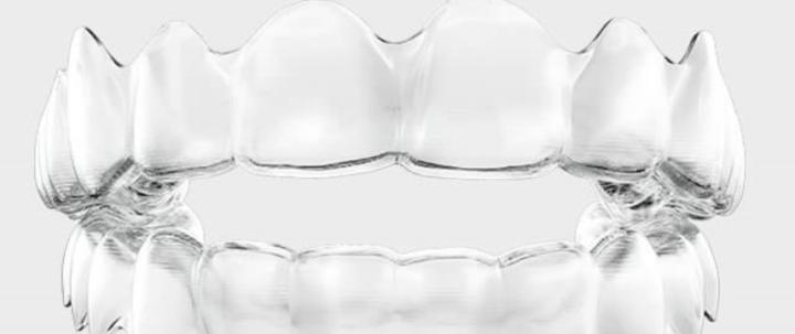 マウスピース型矯正装置を用いた治療の画像