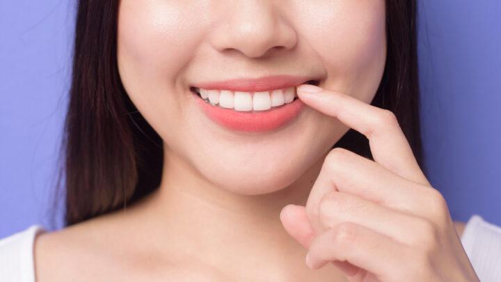 """歯列矯正で美しい歯並びを手に入れるには?歯列矯正の""""いろは""""を認定医が全て解説!の画像"""