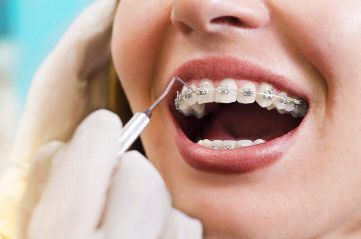 歯列矯正の期間ってどのくらい?長引かせない為におさえておきたいポイントとはの画像